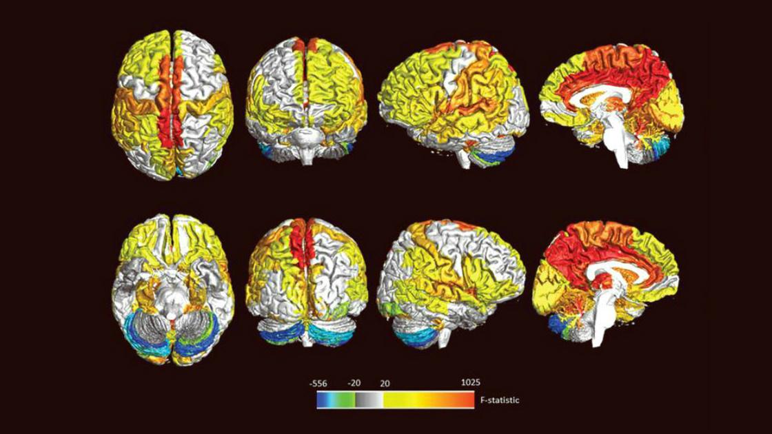 Frauen haben mehr hochaktive Hirnregionen als Männer - Laborwelt